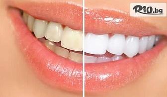 Професионално избелване на зъби с швейцарската избелваща система PURE POWER, от Дентален кабинет Д-р Илиана Трифонова