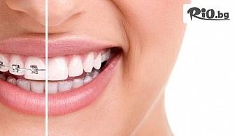 Самолигиращи метални брекети за красива усмивка и прави зъбки, от Биодент