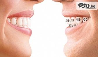 Самолигиращи метални брекети за красива усмивка и прави зъбки, от Био Дент