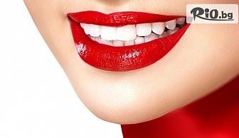 За усмивка със самочувствие! Избелване на зъби с паста Opalescence, от Стоматологичен кабинет Д-р Лозеви