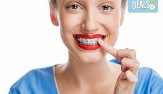 Здрави и красиви зъби! Консултация с ортодонт и 15 % отстъпка от цената на лечението с брекети в DentaLux!